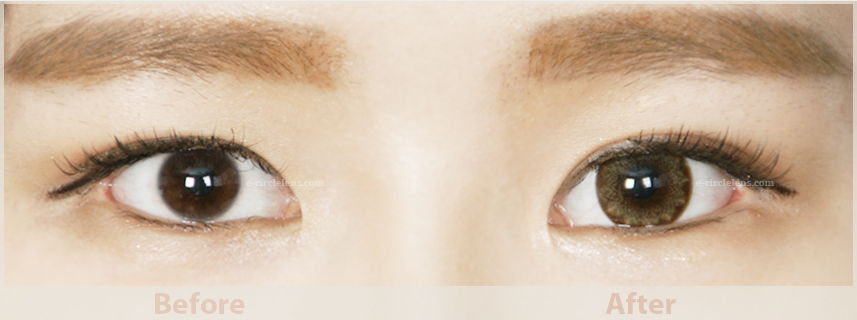 brown toric circle lens for astigmatism before and after